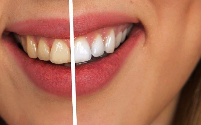 Cara Ampuh Bagaimana Membersihkan Karang Gigi
