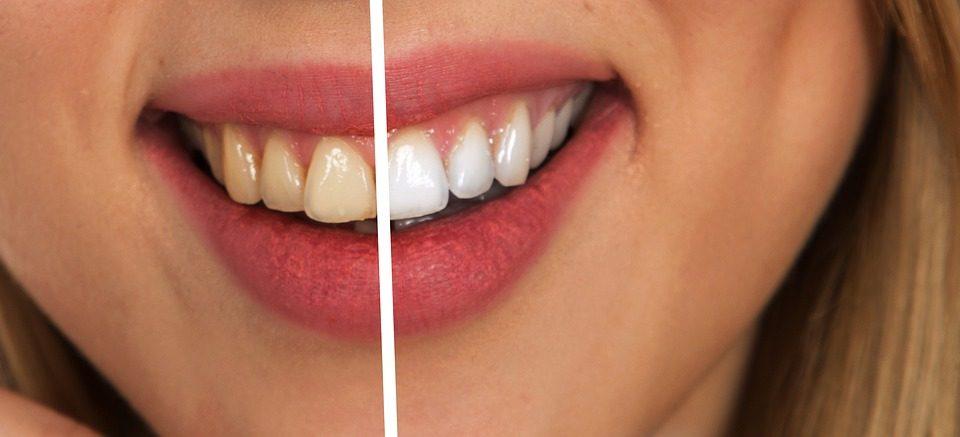 Cara Ampuh Bagaimana Membersihkan Karang Gigi Bagaimana Cara