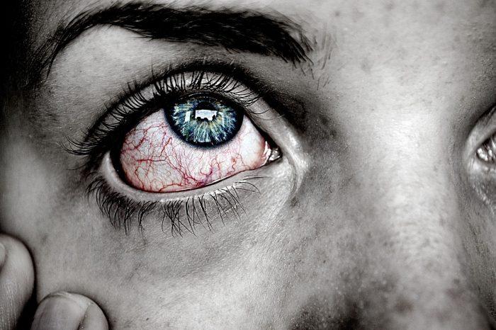 10 Tips Bagaimana Cara Mengobati Mata Merah secara Alami