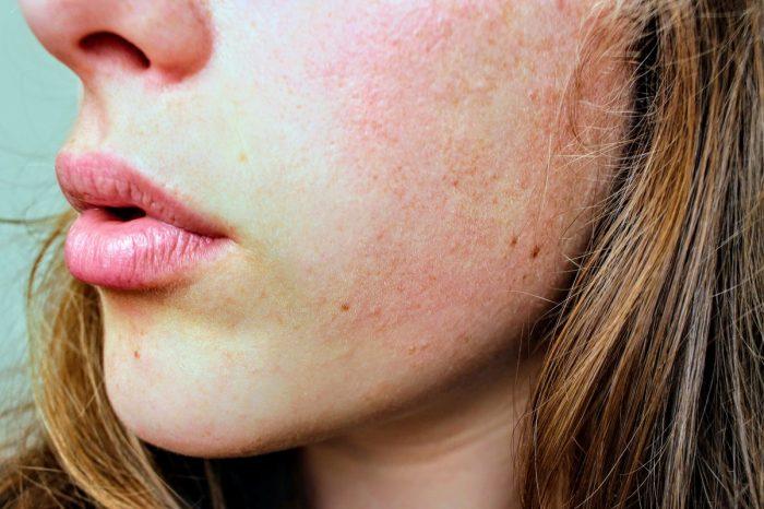 5 Kebiasan Buruk Ini Bisa Bikin Kulit Kusam Dan Rusak