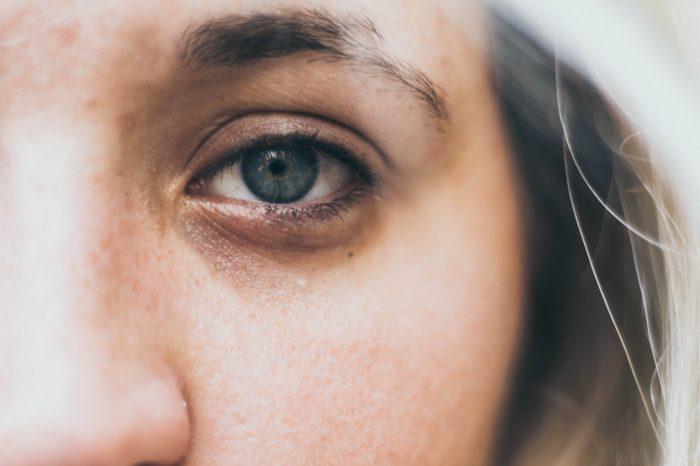 Cara Membersihkan Mata Agar Bening Dan Sehat